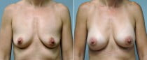Dr. Conway Breast Augmentation