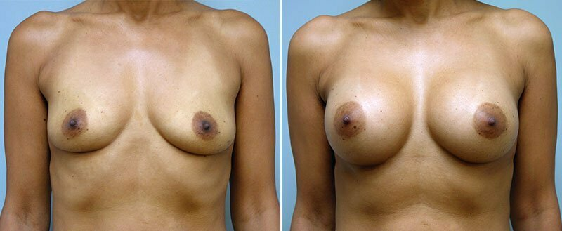 breast-augmentation-6607a-conway