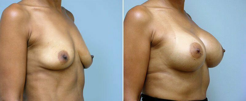 breast-augmentation-6607b-conway