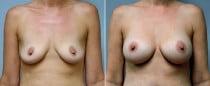 Dr. Conway Breast Augmentation