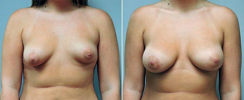 breast-augmentation-6622a-conway