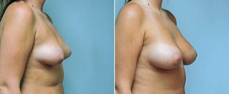 breast-augmentation-6622b-conway