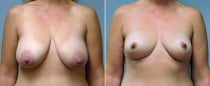 Dr. Conway Breast Lift