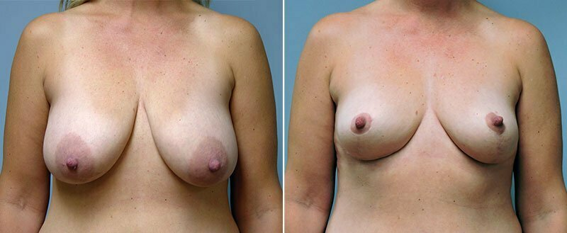 breast-lift-6448a-conway