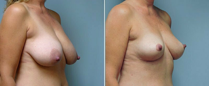 breast-lift-6448b-conway