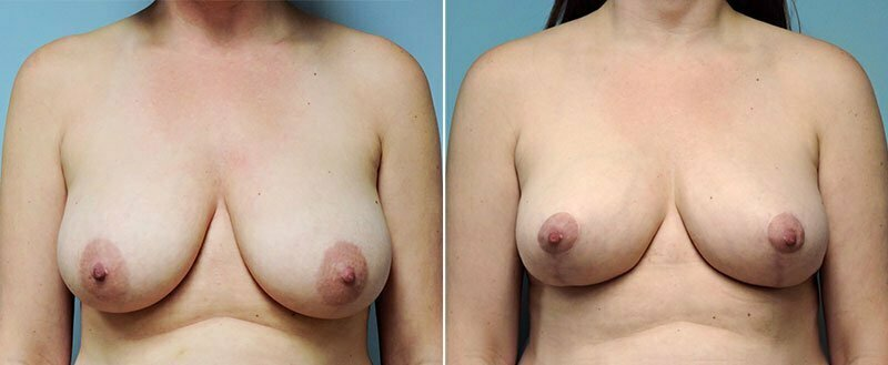 breast-lift-6453a-conway