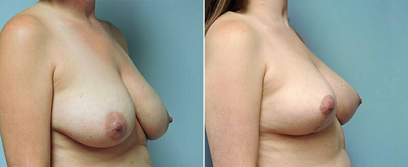 breast-lift-6453b-left-conway