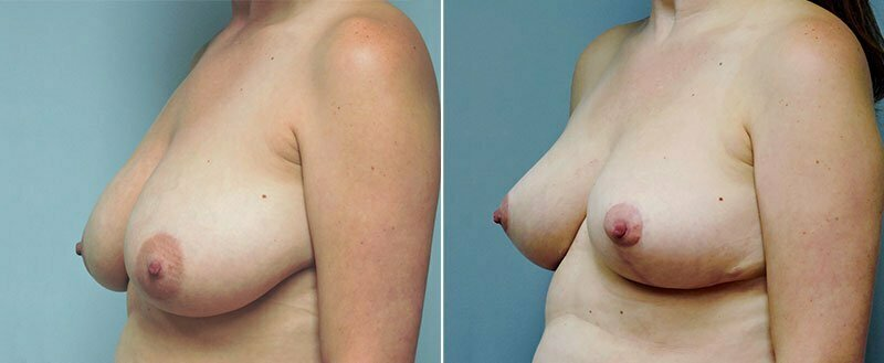 breast-lift-6453b-right-conway