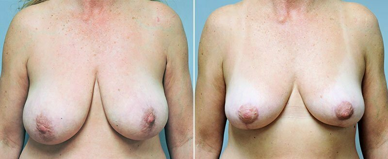 breast-lift-6458a-conway