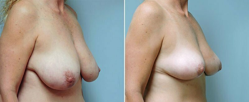 breast-lift-6458b-conway