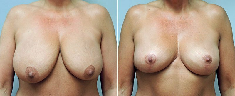 breast-lift-6467a-conway