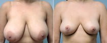 Dr. Conway Breast Reduction