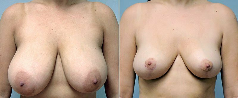 breast-reduction-6284a-conway