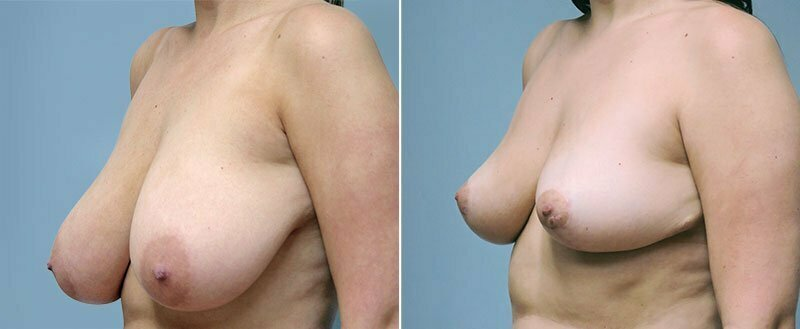 breast-reduction-6284b-conway