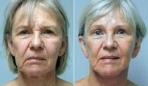 Dr. Conway Facelift & Browlift