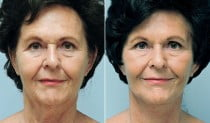 Dr. Conway Facelift & Neck Lift