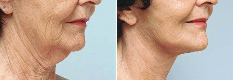 facelift-neck-lift-6238b-conway