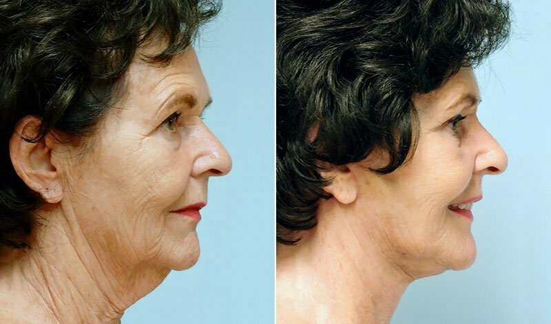 facelift-neck-lift-6238c-conway