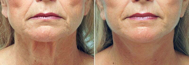 lower-face-lift-necklift-6226a-conway