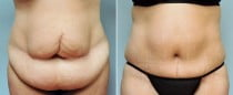 Dr. Conway Tummy Tuck
