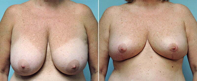 breast-reduction-8738a-conway