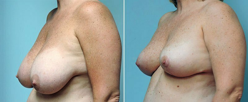 breast-reduction-8738b-conway