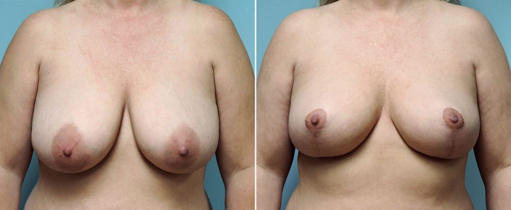 breast-reduction-8744a-conway