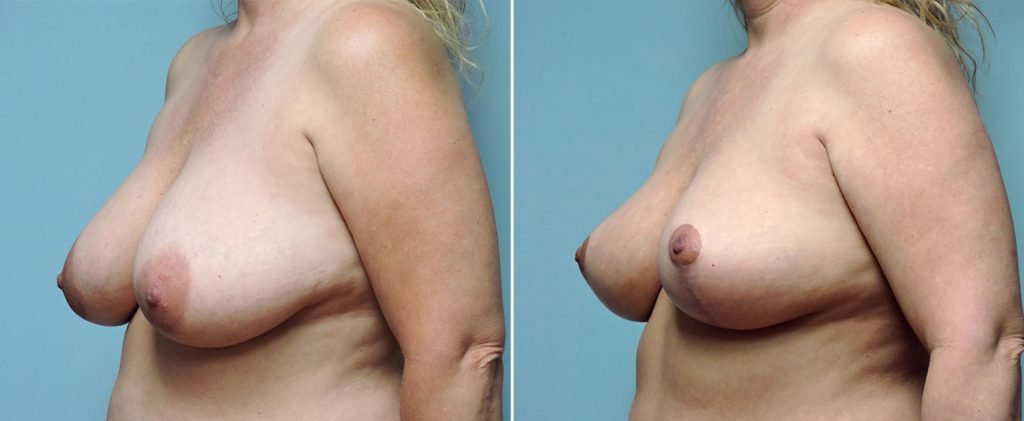 breast-reduction-8744b-conway