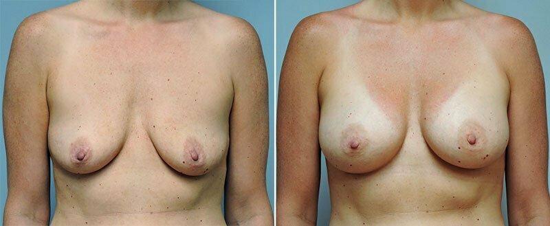 breast-augmentation-10977-07a-conway