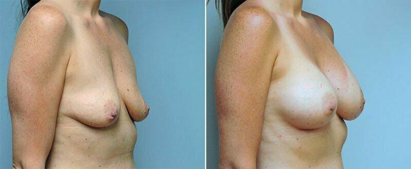 breast-augmentation-10977-07b-conway
