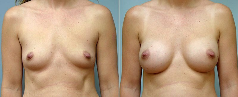 breast-augmentation-10977-15a-conway