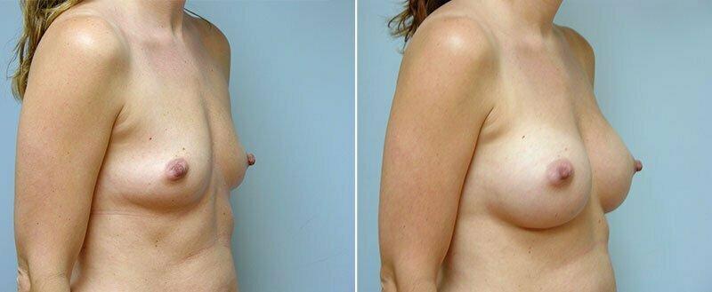 breast-augmentation-10977-15b-conway