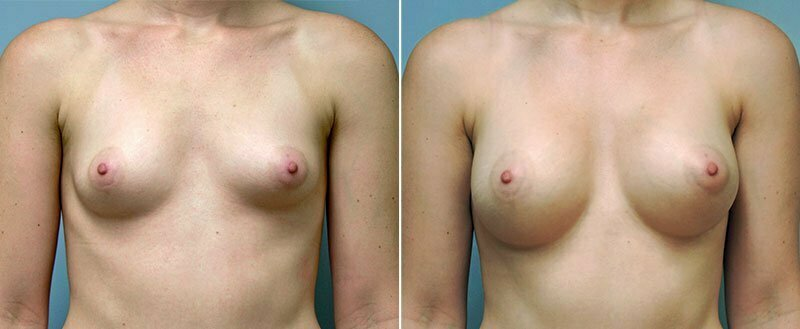 breast-augmentation-10977-19a-conway