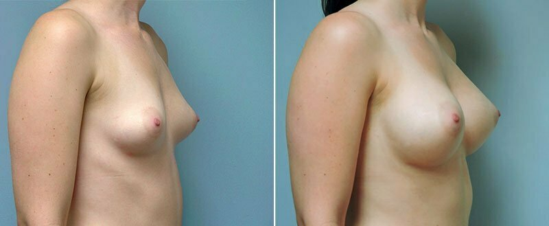 breast-augmentation-10977-19b-conway