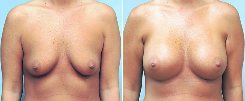 breast-augmentation-10977-23a-conway