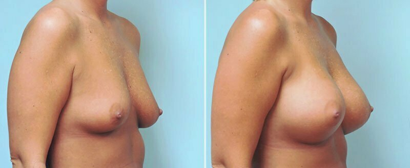 breast-augmentation-10977-23b-conway