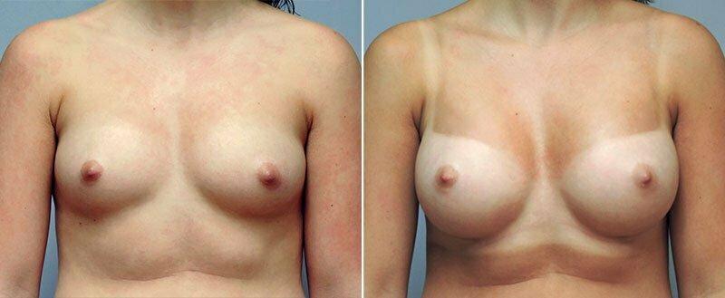 breast-augmentation-10977-27a-conway