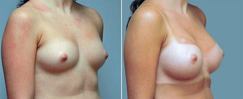 breast-augmentation-10977-27b-conway