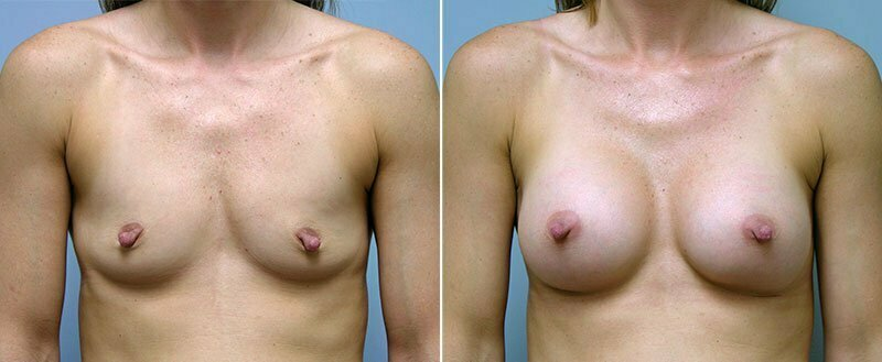 breast-augmentation-10977-3a-conway