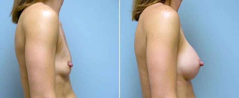 breast-augmentation-10977-3c-conway