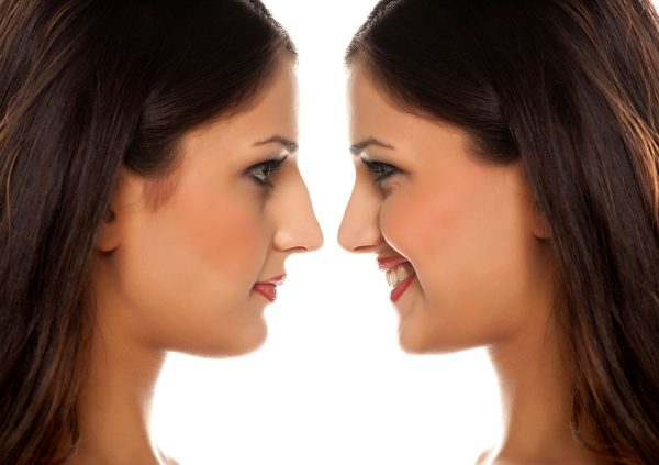 What One Author Wishes She D Known Before Her Rhinoplasty Donald Conway Md Facs
