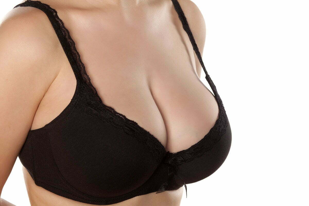 Can You Reduce Breast Size Without Surgery?