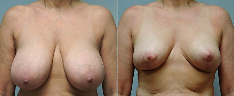 breast-reduction-14207-11a-conway