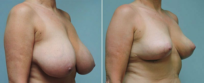 breast-reduction-14207-11b-conway