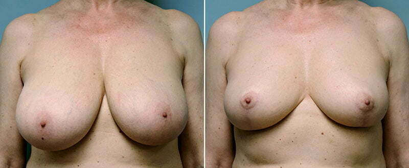 breast-reduction-14207-15a-conway