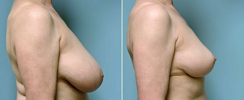 breast-reduction-14207-15c-conway