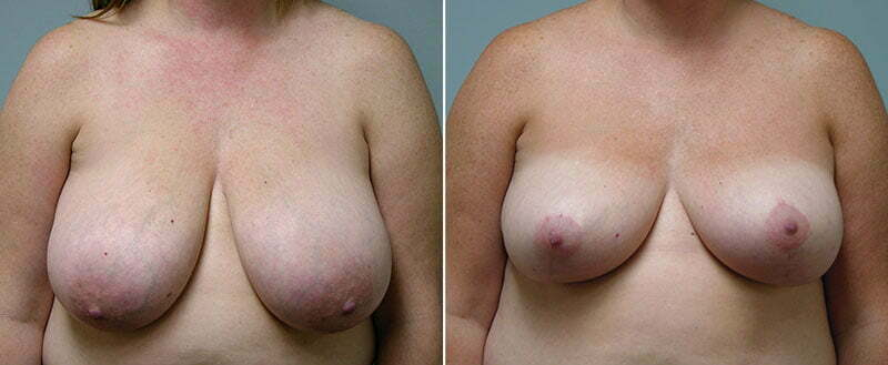 breast-reduction-14207-19a-conway
