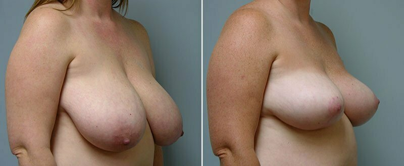breast-reduction-14207-19b-conway