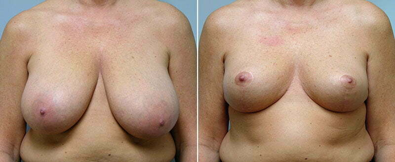 breast-reduction-14207-31a-conway