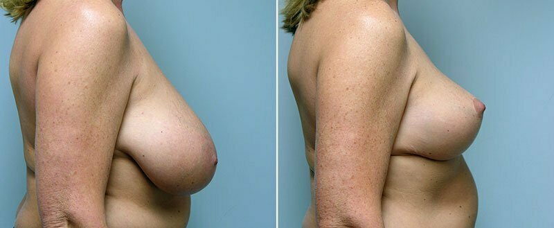 breast-reduction-14207-31c-conway
